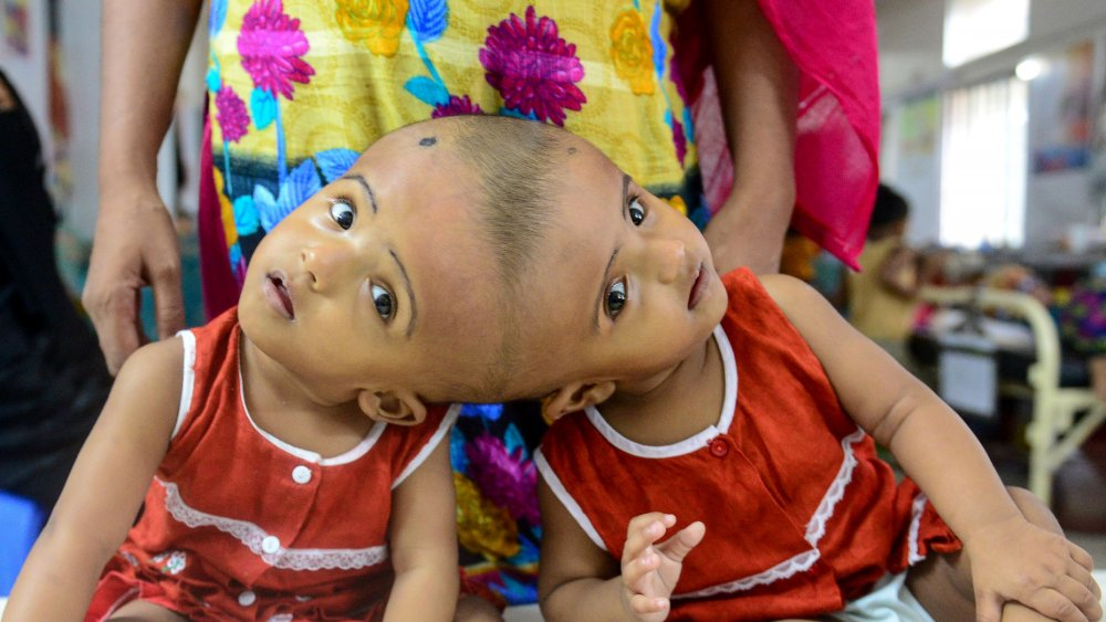What life is really like as a conjoined twin